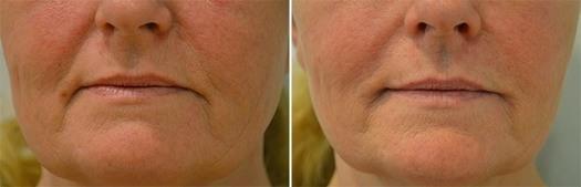 Behandling af furer og nedadvendte mundvige, før/efter