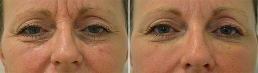 Behandling af mørke rander og rynker ved øjnene. før/efter