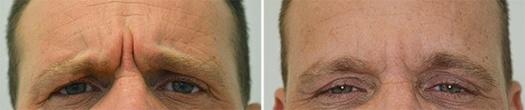 Behandling af rynker ved øjnene, før og efter