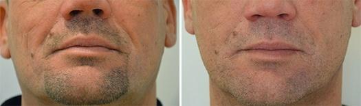 Behandling af furer i området fra næse til mund, før/efter