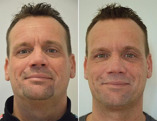 Full-face behandling af rynker og furer, før og efter