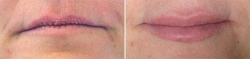 Læber før/efter behandling