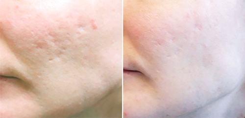 Akne ar på kind, før og efter behandling