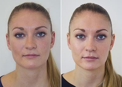 Læbebehandling, før/efter