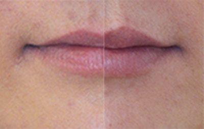 Læber, før/efter behandling