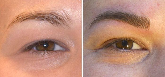behandling af øjenbryn