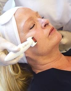 Dermaroller behandling i ansigt