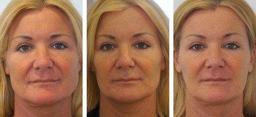 Kvindeansigt, før, under og efter behandling