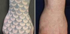 Tatoveringsfjernelse på hånd, før og efter