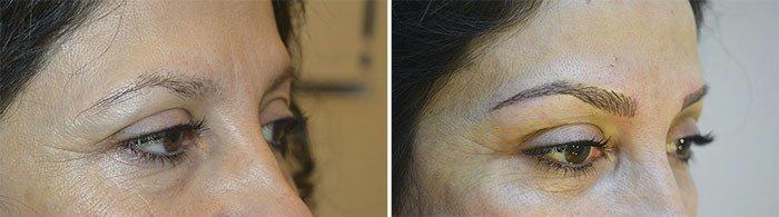 Før og efter mikropigmentering af øjenbryn