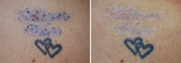 Gammel tatovering forsøgt fjernet med mælkesyre, før og efter behandling med Pico laser