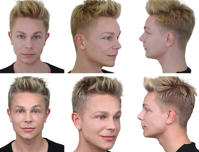 Stig Andersen før og efter Restylane behandling