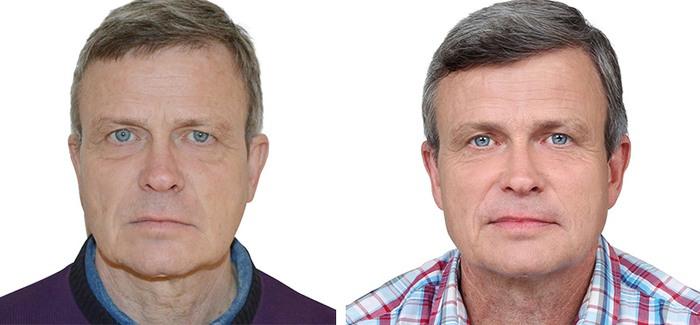 Jørgen Licht før og efter Dermaroller og Restylane behandling