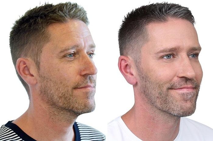Mandeansigt, før og efter behandling af rynker og furer