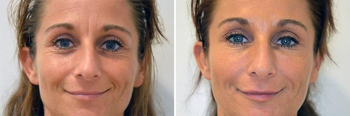 Før/efter behandling af rynker ved øjne