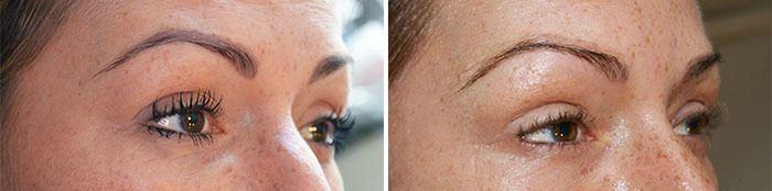 mikropigmentering øjenbryn