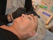 Fjernelse af permanent makeup