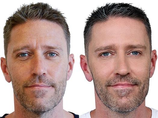 Kenneth Nilsson ansigt før/efter