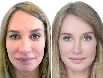 Kvinde 28 år, ansigt før/efter