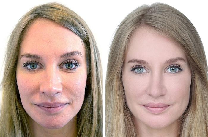 Kvinde 28 år, ansigt før/efter, forfra