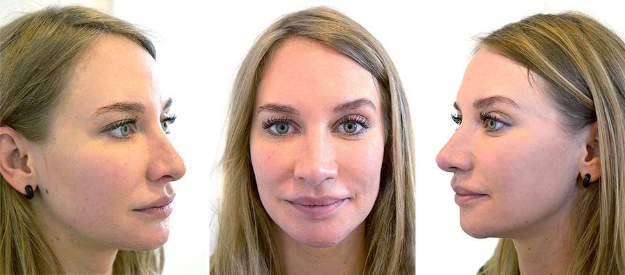 Kvinde 28 år, ansigt før behandling, 3 vinkler