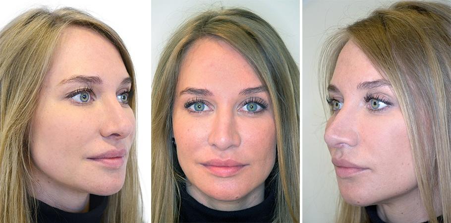 Kvinde 28 år, ansigt midt i behandlingsforløb, 3 vinkler