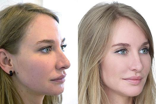 Kvinde 28 år, ansigt før og efter, forfra højre