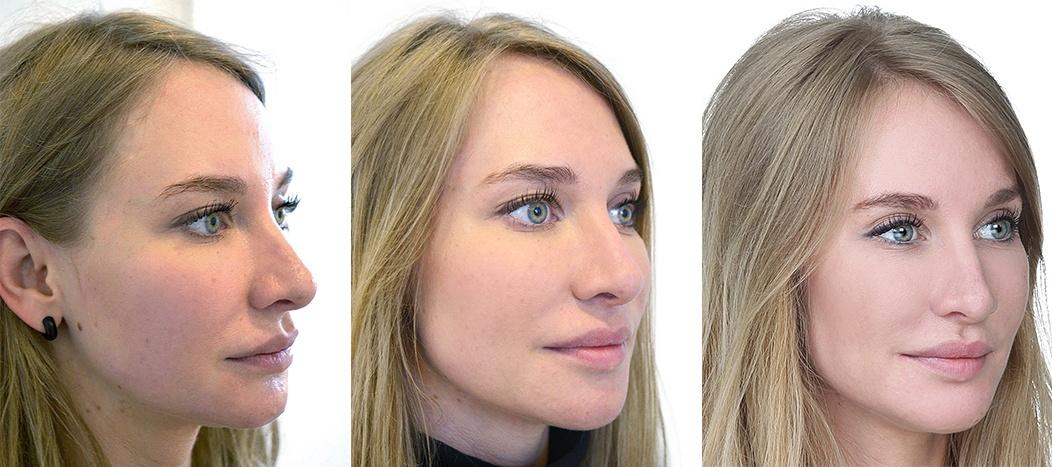 Kvinde 28 år, før, mellem og efter behandling