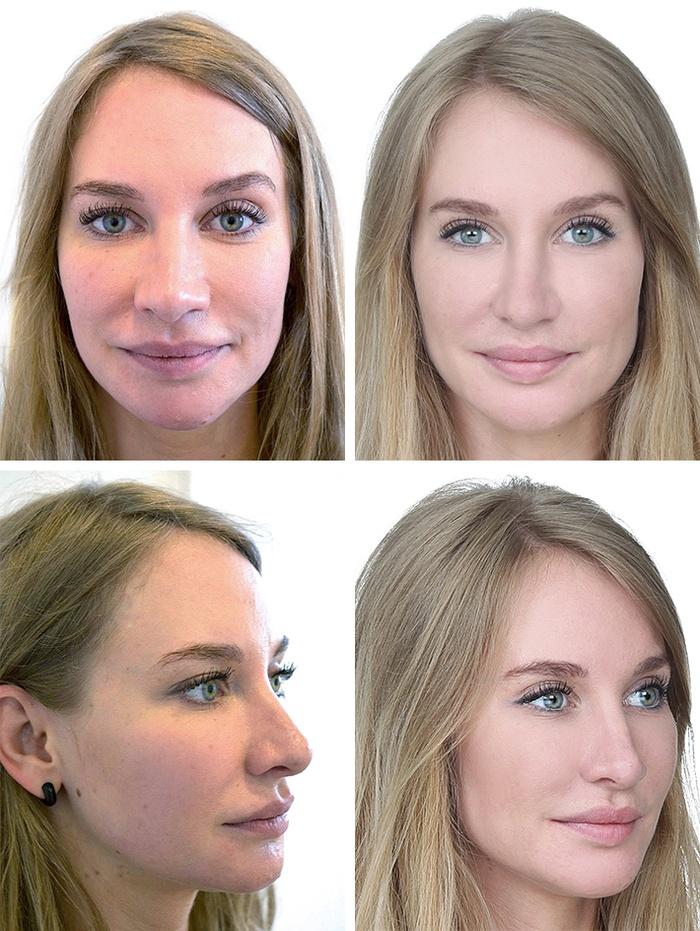 Kvinde 28 år, ansigt før/efter, 2 vinkler