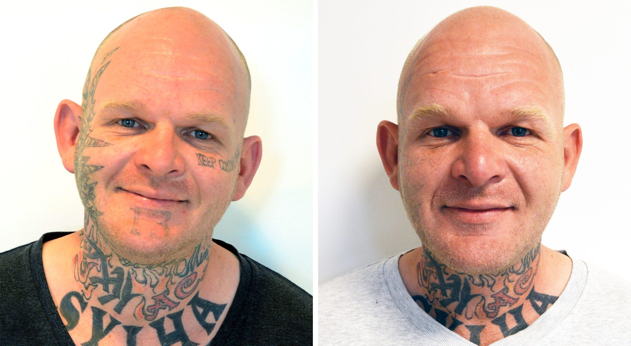 Ansigt forfra før og efter tatoveringsfjernelse