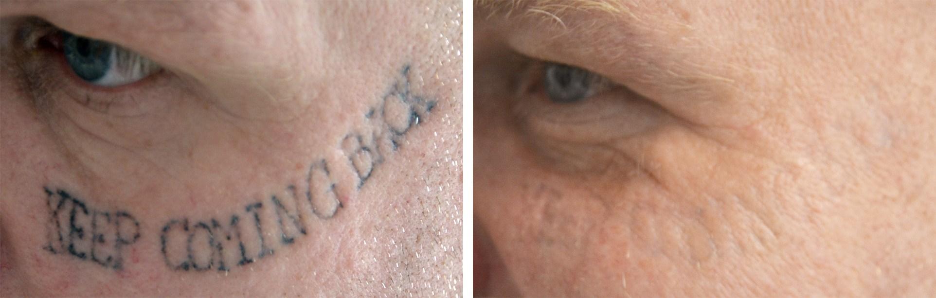 Ansigt skråt forfra før og efter tatoveringsfjernelse