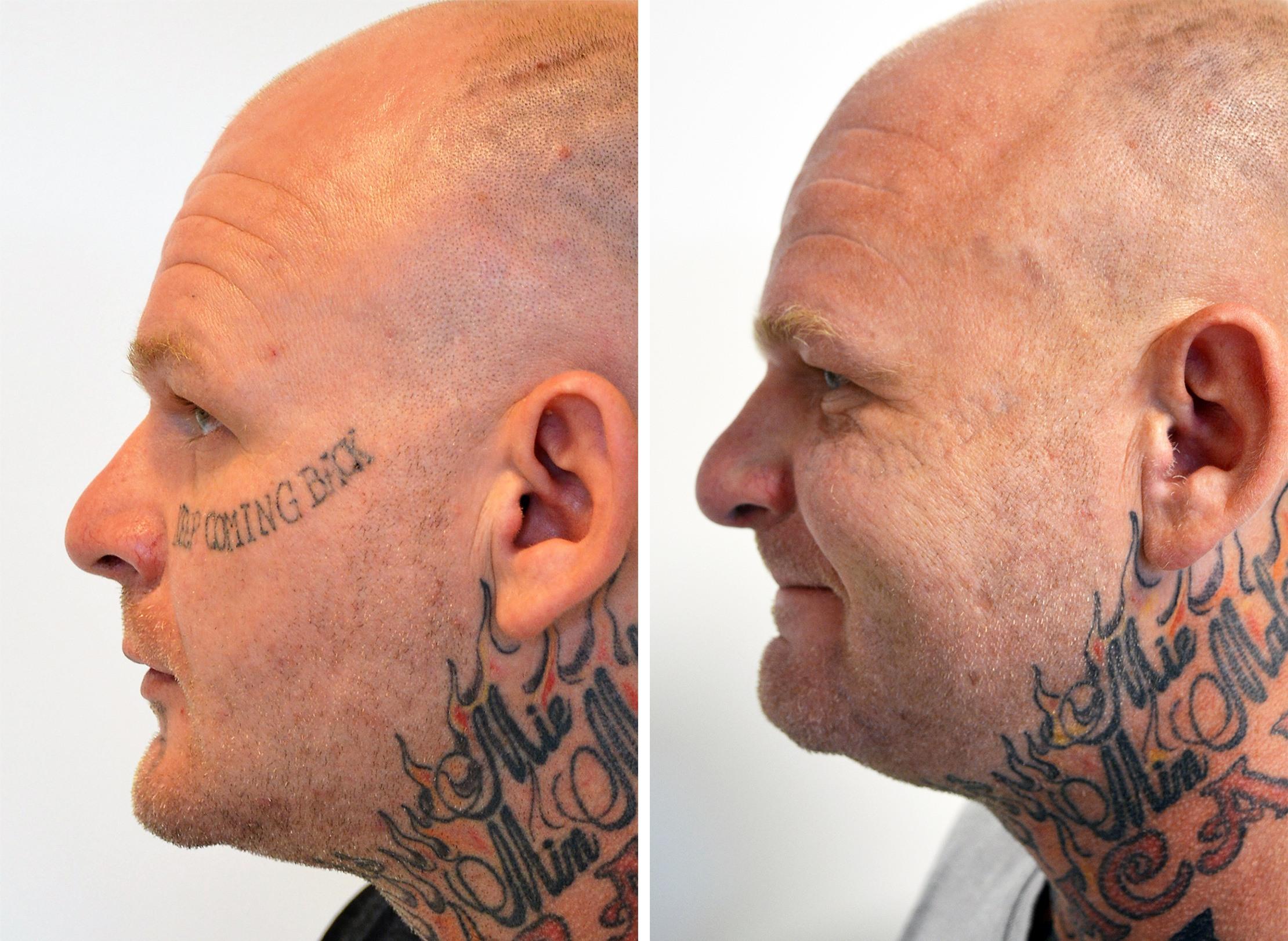 Ansigt fra siden før og efter tatoveringsfjernelse