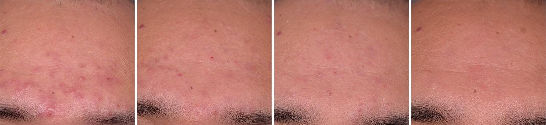 Behandling af akne i panden med Kleresca, før og efter i 4 trin
