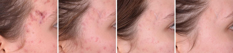 Behandling af akne i tinding med Kleresca, før og efter i 4 trin