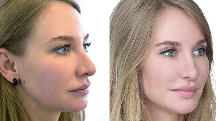 Kvindeansigt før og efter behandling