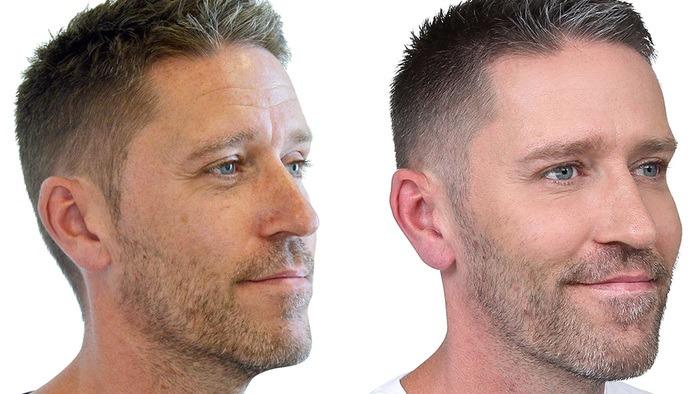 Mandeansigt før og efter behandling
