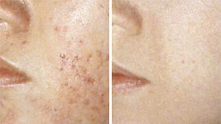Behandling af akne ar, før og efter
