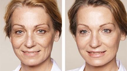 Kvindeansigt før og efter behandling af rynker og furer
