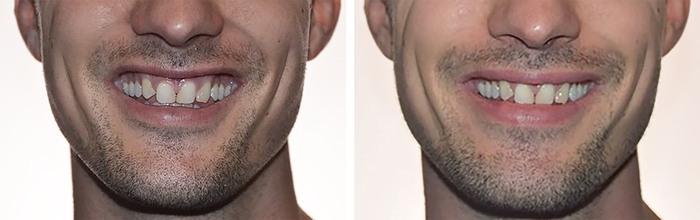Behandling af synligt tandkød (gummismil) - før og efter