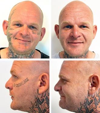 Tatovering i ansigt, før og efter