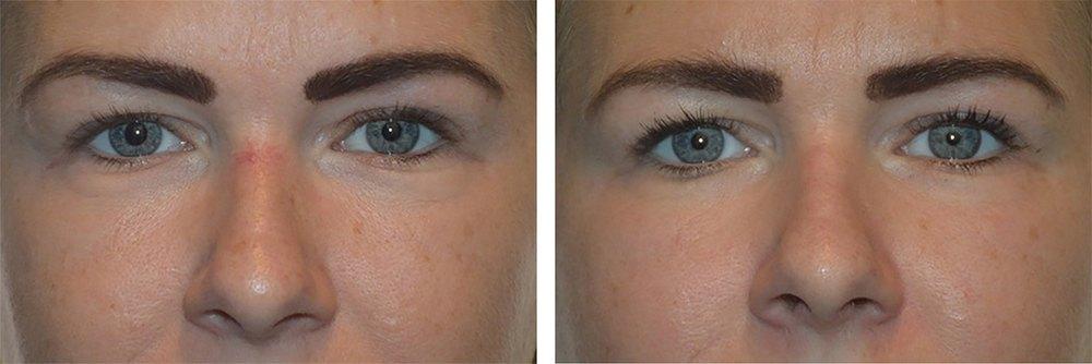 Karsprængninger på næsen - før og efter behandling