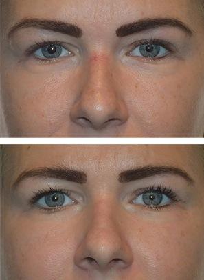 Karsprængninger næse - før og efter behandling