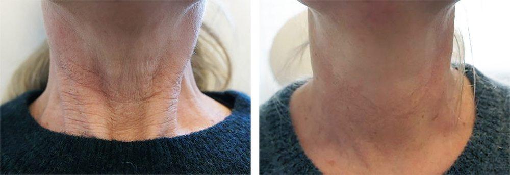 Behandling af rynker og furer på halsen - før og efter