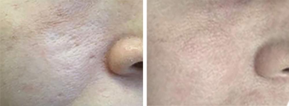 Behandling af akne ar på kind - før og efter