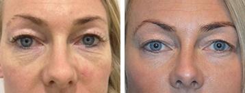 Øjenomgivelser før og efter CO2 behandling