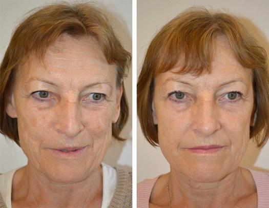 Pigmentbehandling i ansigtet, før og efter
