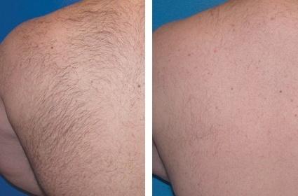 Manderyg, før og efter hårfjerning