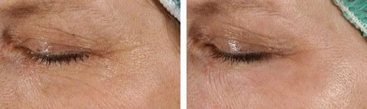Reduktion af rynker ved øjnene med CO2 laser, før/efter