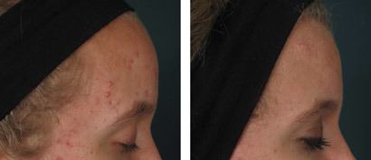 Akne i pande, før/efter behandling