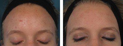 Akne i panden, før/efter behandling